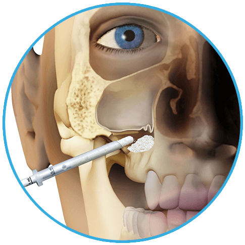 1LATERAL-ACCESS-SINUS-LIFT