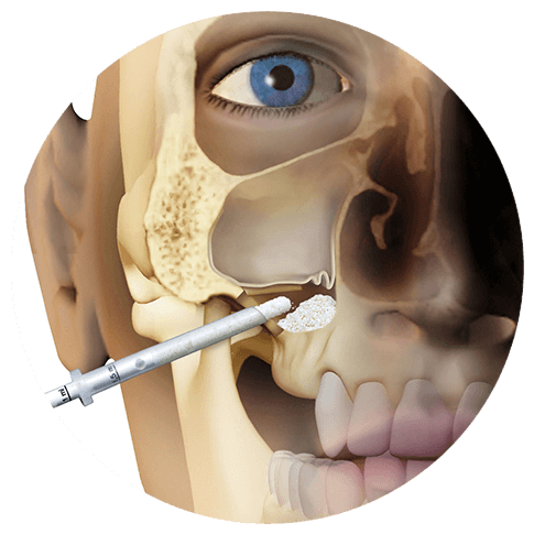1LATERAL-ACCESS-SINUS-LIFT2
