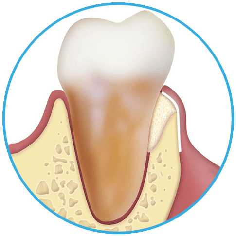 1PERIODONTAL-REGENERATION